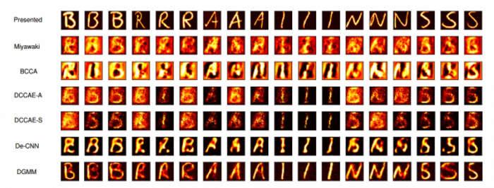 Comparación entre diferentes técnicas de reconstrucción de imágenes a partir de escáneres cerebrales.
