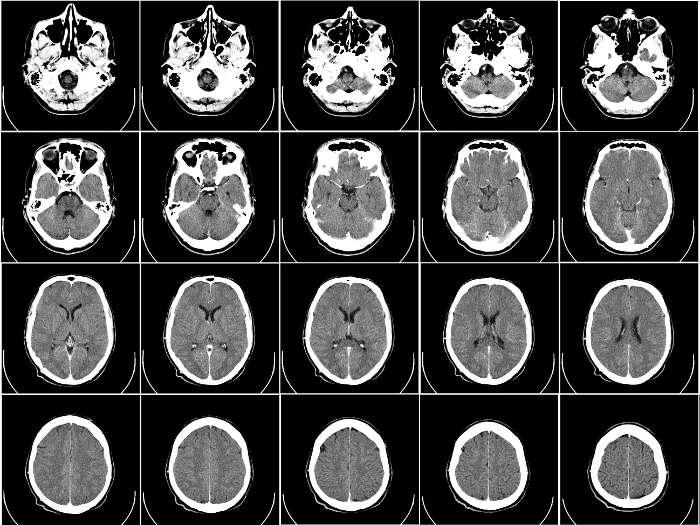 Tomografía computarizada (CT) de un cerebro humano