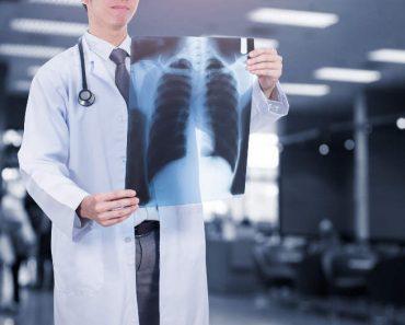 Stanford desarrolla CheXNet, un algoritmo de IA capaz de diagnosticar la neumonía mejor que los radiólogos