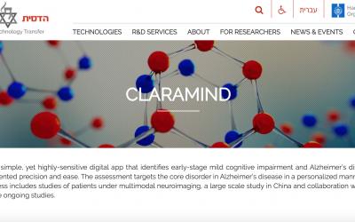 Chatbot israelí para diagnosticar la enfermedad de Alzheimer en fase inicial
